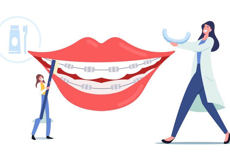 5 formas de saber si necesitas ortodoncia