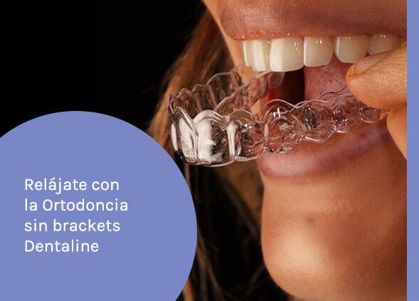 ortodoncia sin brackets - 1