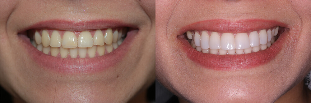 blanqueamiento-dental antes-despues