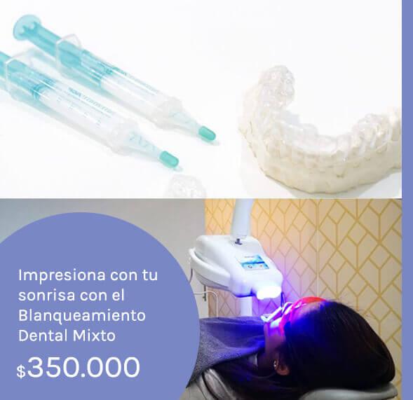 blanqueamiento-dental-medellin-precios-2