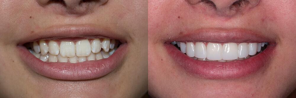caso-antes-despues-carillas-dentales-medellin-valeria