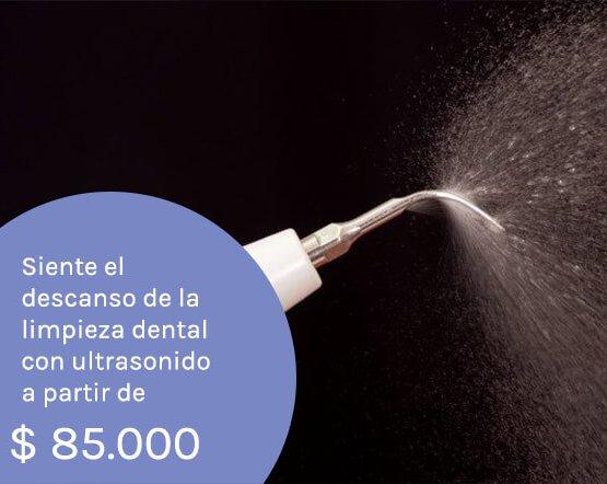 limpieza-dental-medellin odontogos