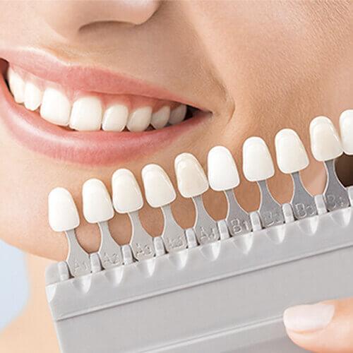 precio-blanquemiento-dental-medellin