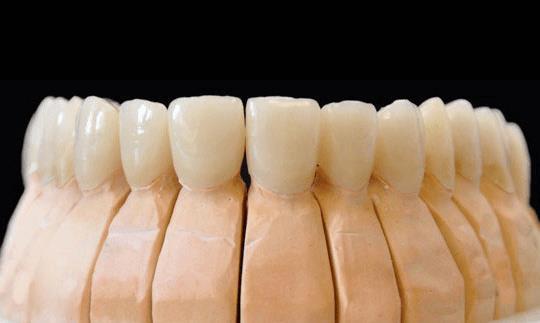 que-precio-tienen-las-carillas-dentales