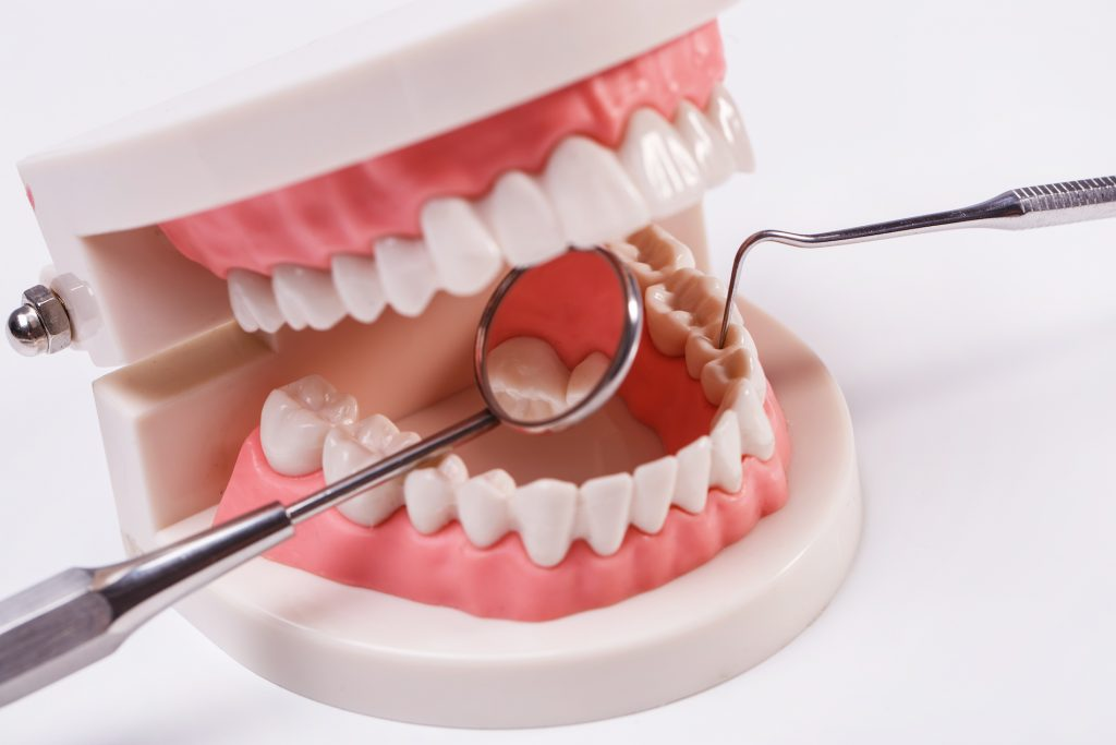 gingivoplastia