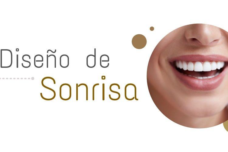 Diseño de Sonrisa en Medellín