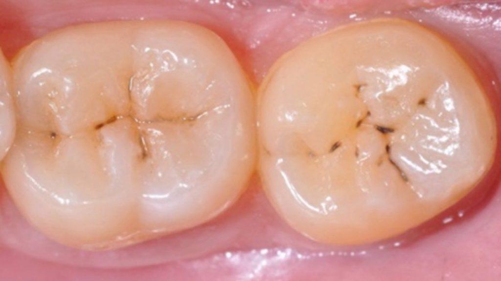 fracturas en los dientes