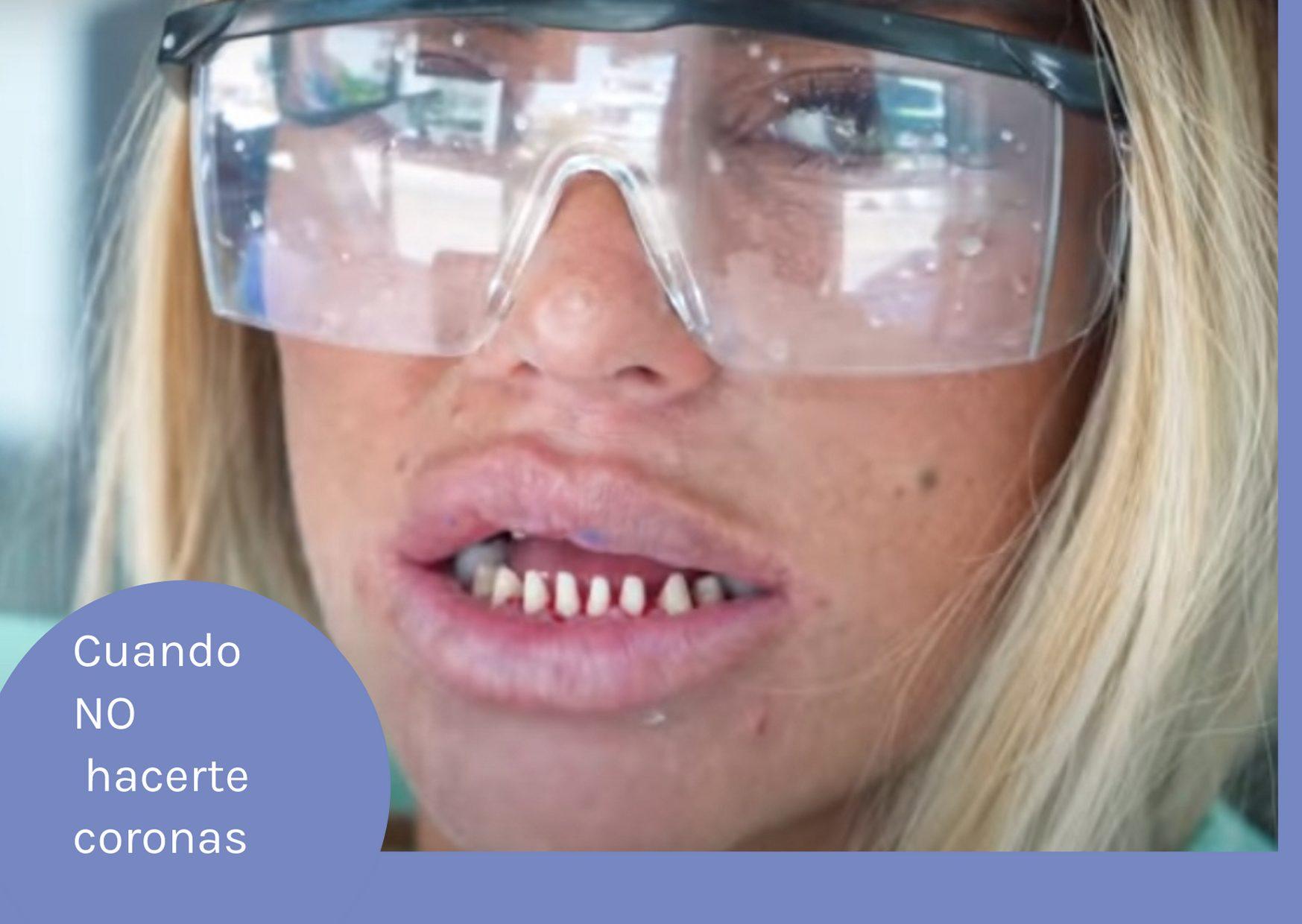 No hacerte coronas dentales