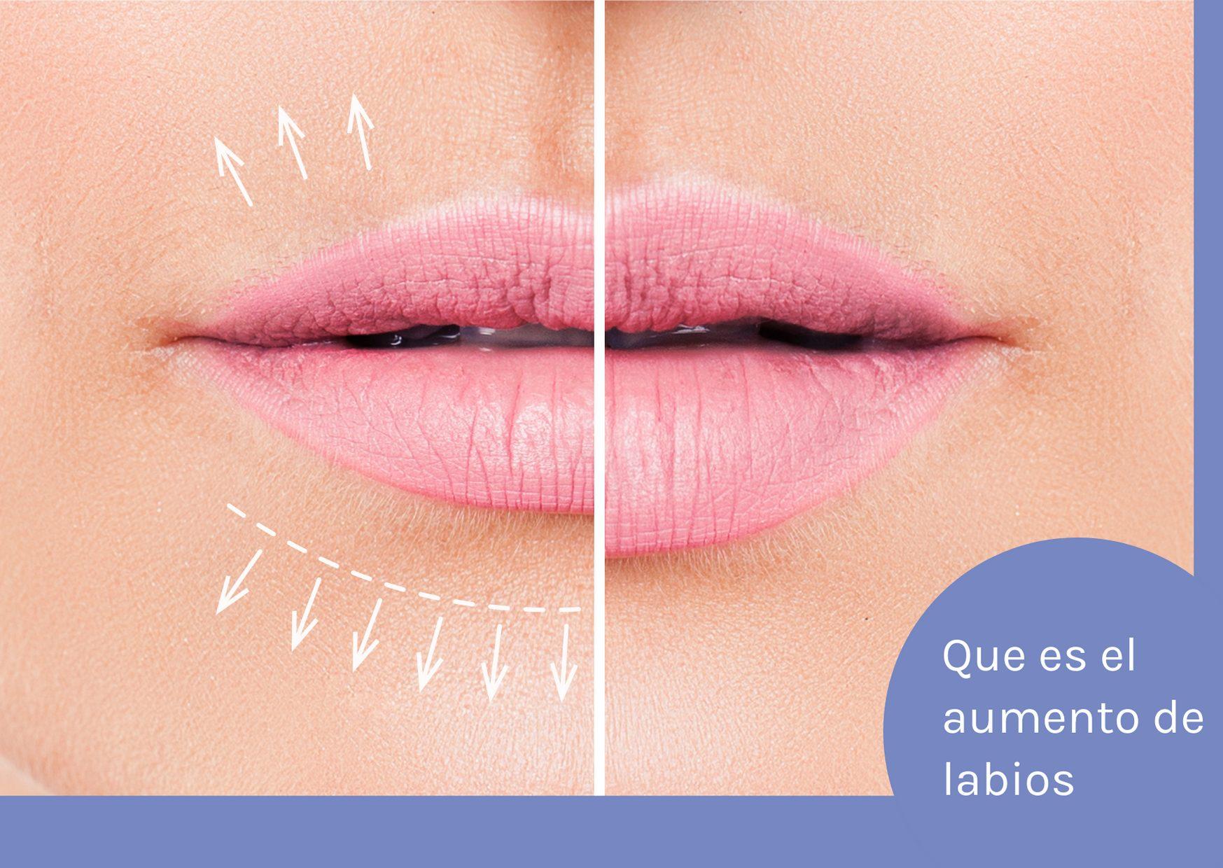 que es aumento de labios