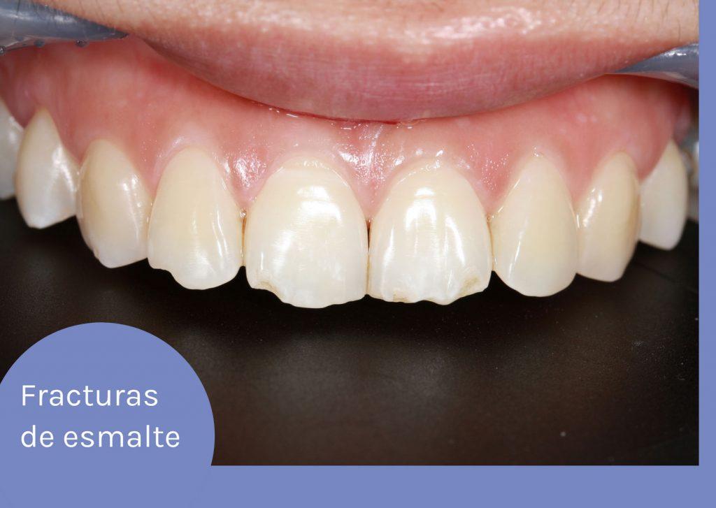 fractura dental de esmalte