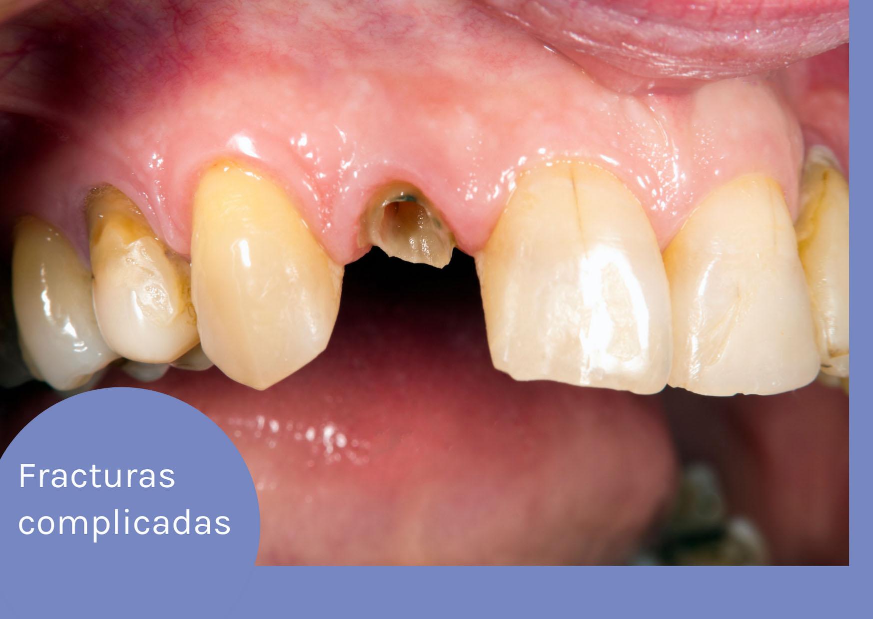 fractura de esmalte y dentina acompañada de dolor