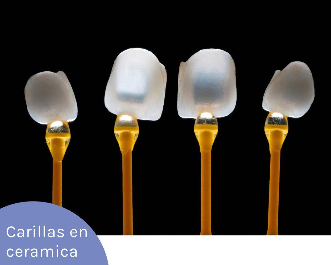 carillas dentales en caramica