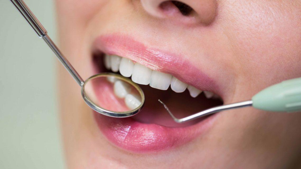 qué son las carillas dentales y cómo te ayudan