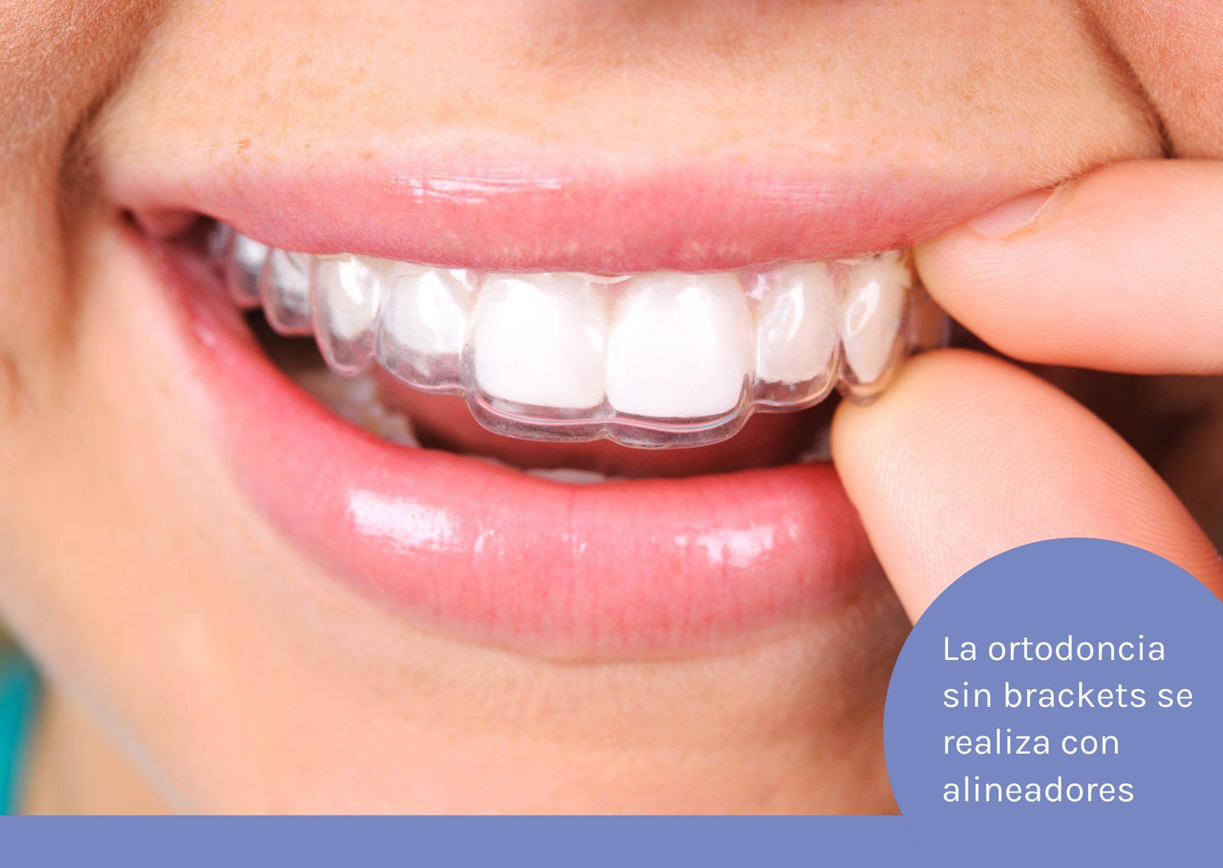 ortodoncia sin brackets con alineadores