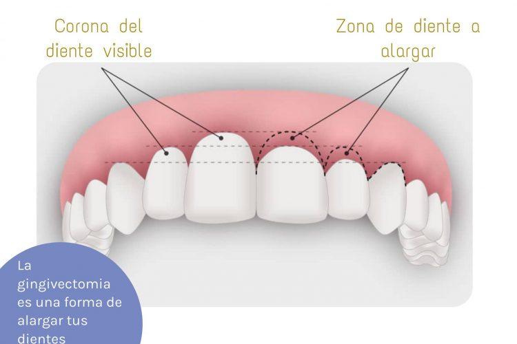 lo que nunca te contaron gingivectomia