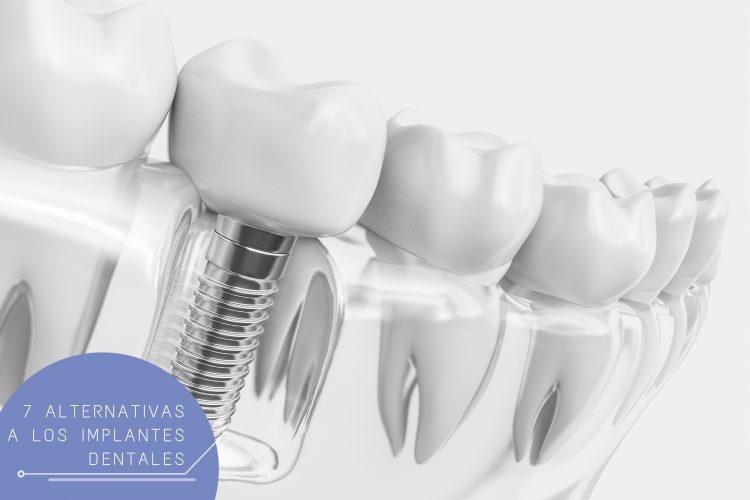 alternativas a implantes dentales